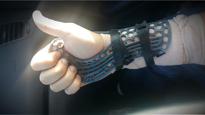 Wrist brace – 3DPrint